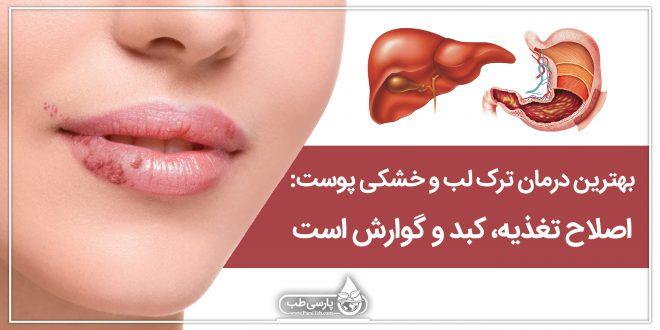 بهترین درمان ترک لب و خشکی پوست: اصلاح تغذیه، کبد و گوارش است