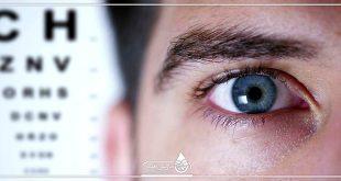 تشخیص و درمان بیماری های چشم و مشکلات بینایی