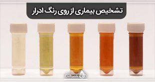 تشخیص بیماری از روی رنگ ادرار