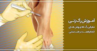آموزش رگ زنی ، معرفی رگ ها و روش های انجام فصد در طب سنتی