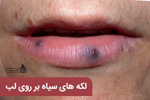 تشخیص بیماری با رنگ لب