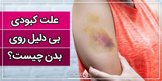 علت کبودی بی دلیل روی بدن چیست؟